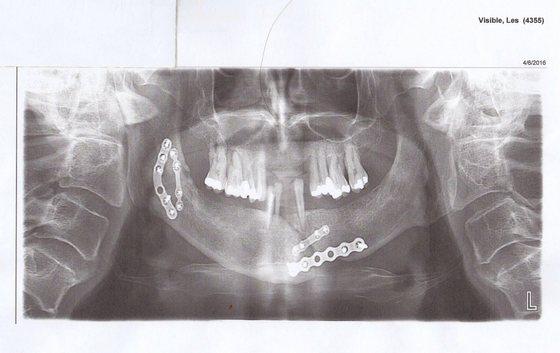Les Visible broken jaw